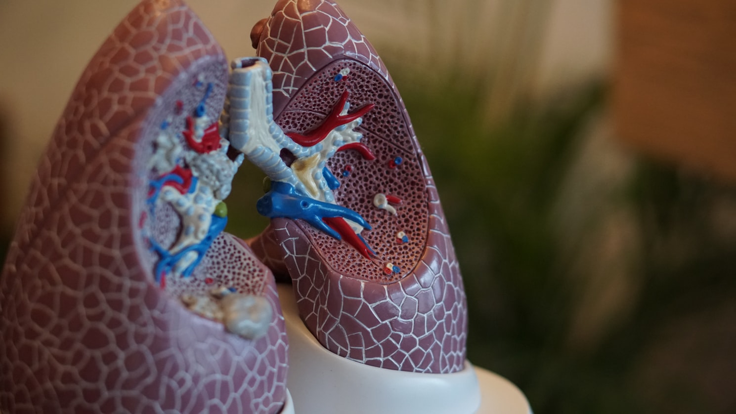 A mold of human lungs. Respitory issues are a common reason for senior hospitalization
