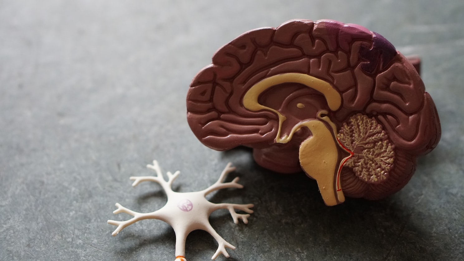 A mold of the brain and an axon. One of the most dangerous illnesses for seniors is alzheimers disease