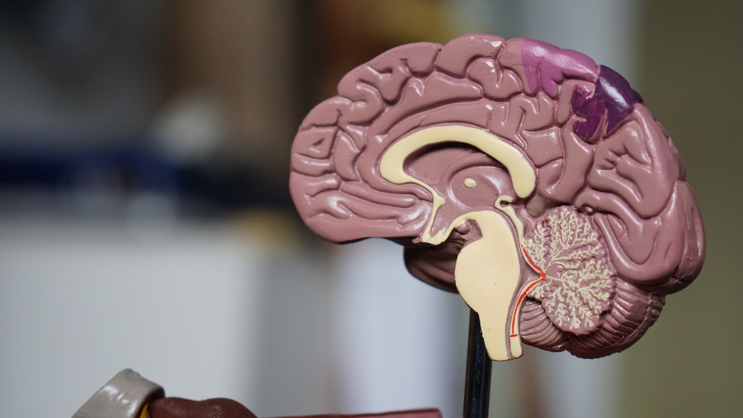 A mold of the brain. Dangerous illnesses for seniors that can occur are strokes.