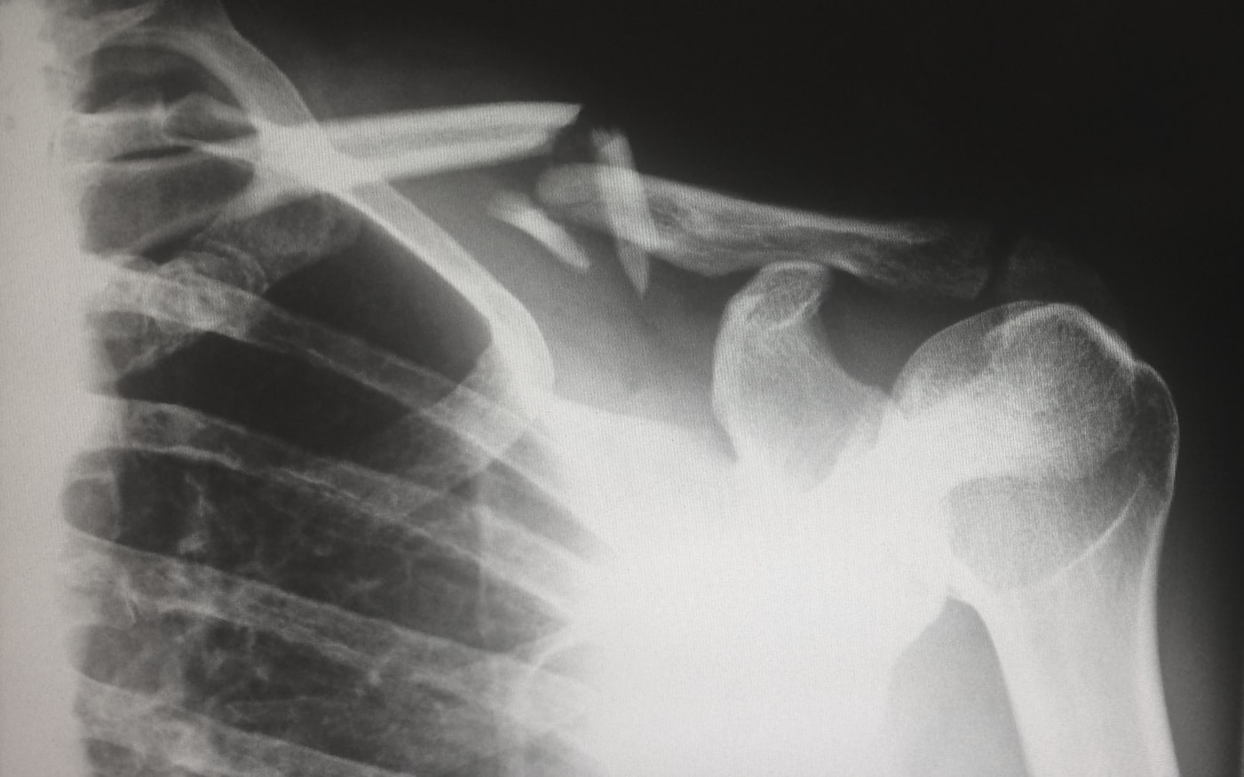 An x-ray of a broken shoulder. Broken bones are a common reason for senior hospitalization