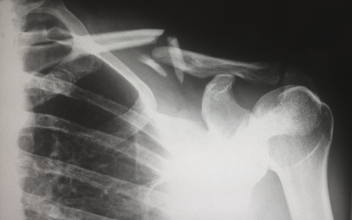 An x-ray. Osteoporosis is one of the 10 common senior health issues.